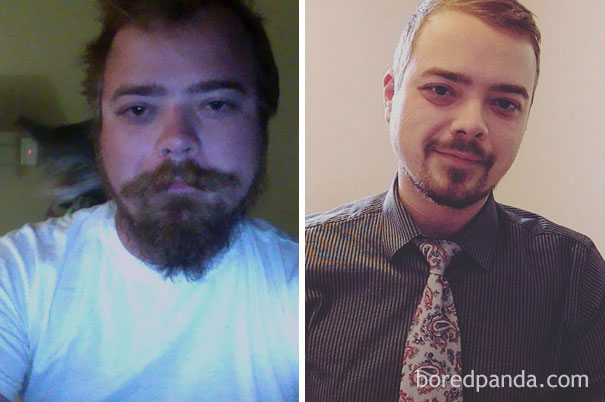 before-after-sobriety-photos-02