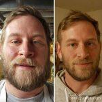 10 photos avant-après qui montrent ce qu'il se passe quand vous arrêtez de boire