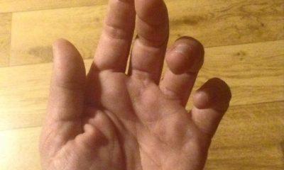 Une main et un message pour expliquer le malaise des soignants !ation de